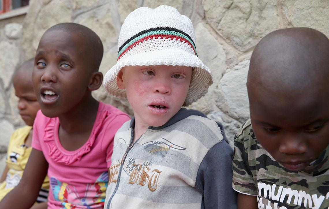 Albino en África